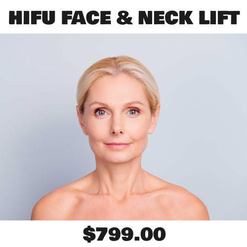 Hifu face and Neck Lift